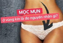 Photo of Vùng kín mọc mụn ở nữ giới là bệnh gì?